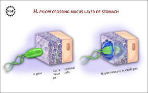 PD Ulcer-causing_Bacterium_(H.Pylori)_Crossing_Mucus_Layer_of_Stomach