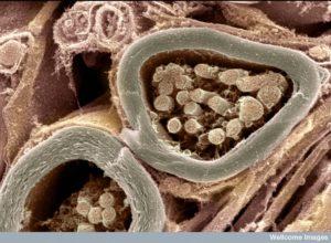 B0005970 Myelinated nerve fibres