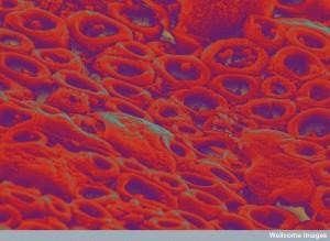 B0006713 Myelinated nerve fbres