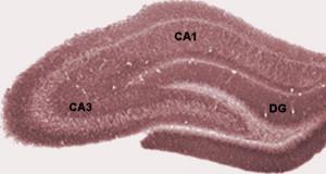PD HippocampalRegions