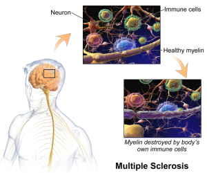 BruceBlaus wiki Multiple_Sclerosis