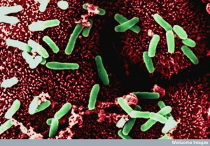 B0003412 Clostridium on gut lining - coloured