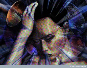 B0003484 Migraine - illustration