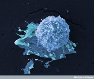 B0006520 Breast cancer cells